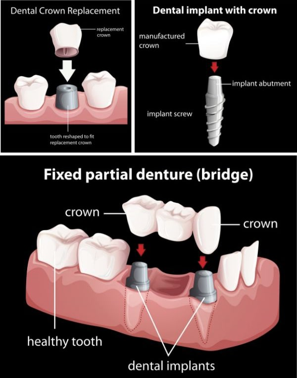 uses of dental crowns