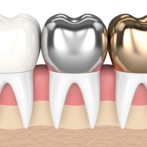 how long do dental crowns usually last